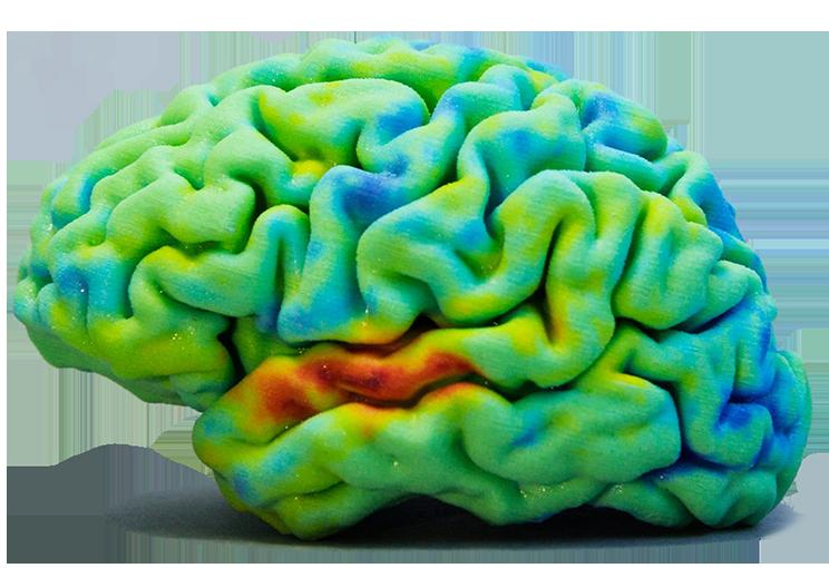 پرینت سه بعدی مغز