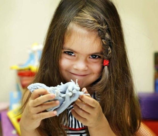 میا گونزالز، دختربچهای که با کمک پرینت سه بعدی نجات یافت