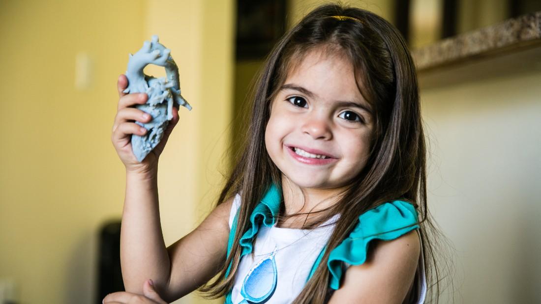 میا دختربچه ی نجات یافته با پرینت سه بعدی