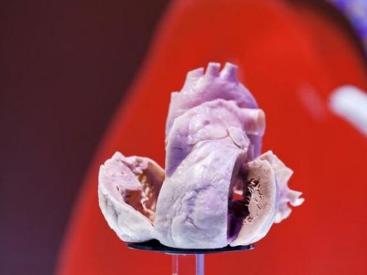 پرینت سه بعدی قلب به عنوان مدل جراحی