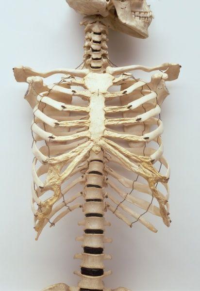 سختی درمان آسیبهای دنده انسان بدون چاپ سه بعدی