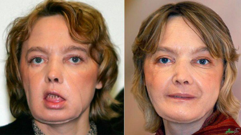 پیوند پوست، روشی برای بهبود جراحات پوستی