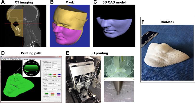 پرینتر سه بعدی و بیوماسک به عنوان راهحل مناسبی برای بهبود جراحات پوستی