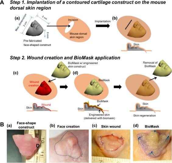 پرینتر سه بعدی و بیوماسک راهحل مناسبی برای بهبود جراحات پوستی