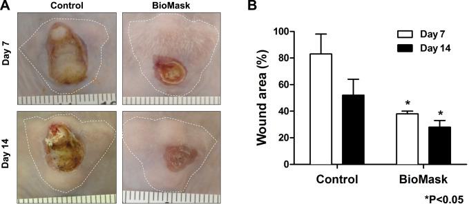 پرینتر سه بعدی و بیوماسک مناسبی برای بهبود جراحات پوستی